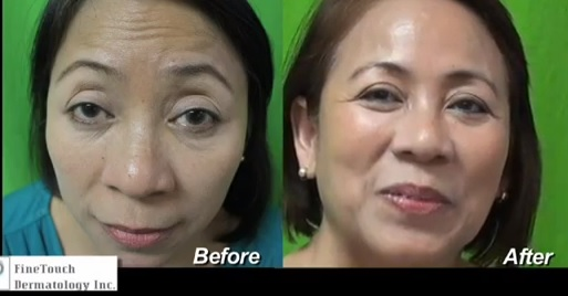 before and after belotero treatment of forehead wrinkles