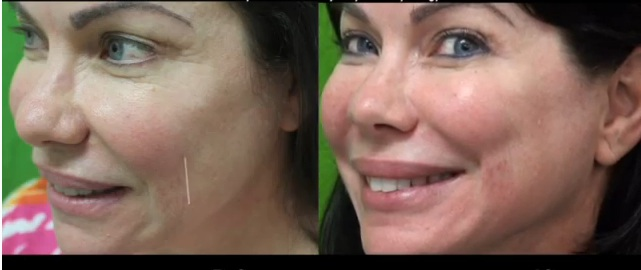 Belotero Patient- Redondo Beach Treatment Results For Smile Line
