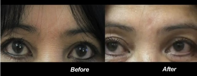 before and after belotero injection for frown lines| Botox alternative