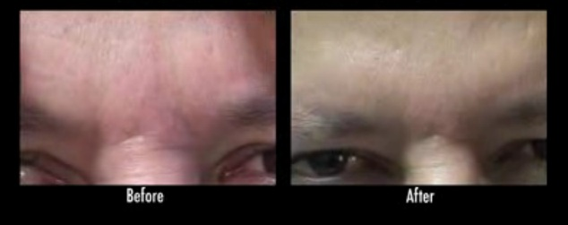 los angeles frown lines in a male patient Treatment with Dysport