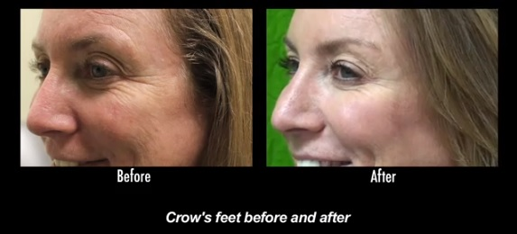 Crows Feet Reduction| Best Botox Services - Los Angeles