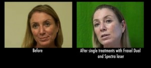 Before and after age spots treatment from fraxel repair laser in a los angeles patient