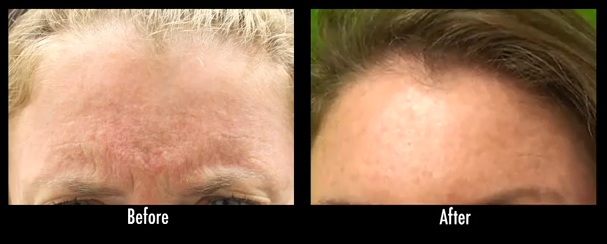 los angeles frown lines|Treatment with Botox - before & after