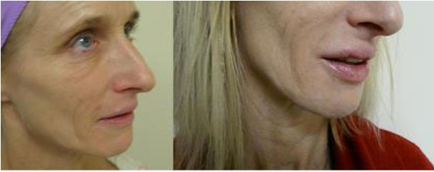 Juvederm|Treatment For Thin Lips|Before & After Photos of Patient