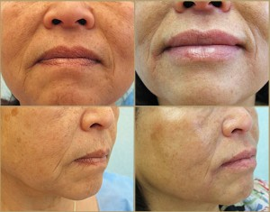 Juvederm| Best Lip Plumping Filler| Natural Looking Results on Patient