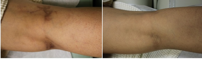 Leg Vein Removal Services|Patient's Before & After Images