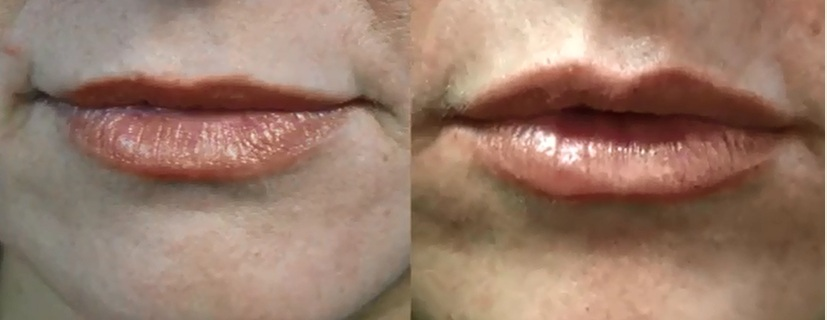 Lip Enhancement Services|Dermal Filler | Patient Images