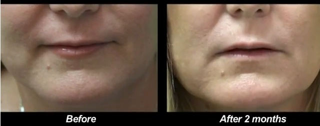 los-angeles-non-surgical-jowl-lift before and after