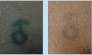 Tattoo Removal Process| Spectra Laser
