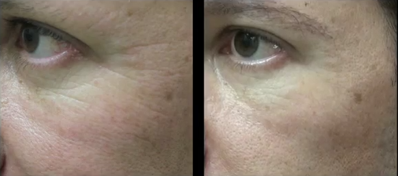 crows feet treatment with belotero injections