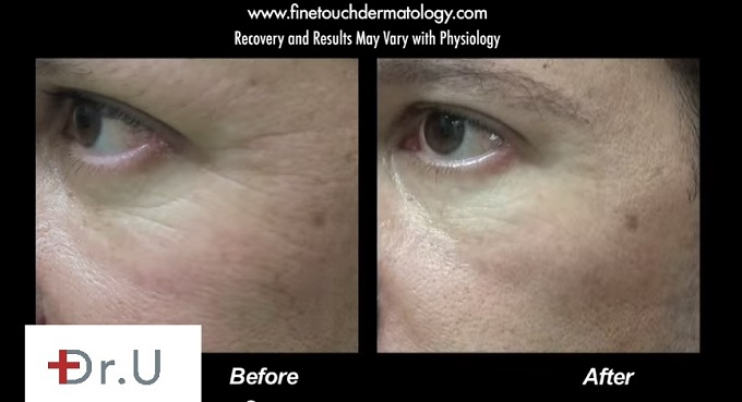 Crow's Feet Treatment With Belotero| Left Side of Face