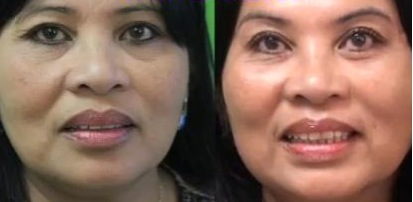 result of eyebags treatment with radiesse in a los angeles patient