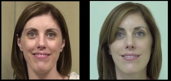 Filling Early Stage Laugh Lines| Hyaluronic Acid Filler