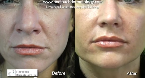 before and after radiesse treatment of nasolabial folds