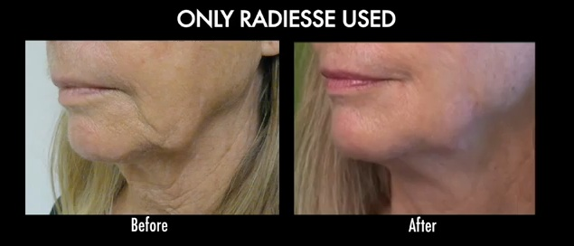 before and after radiesse for jowl treatment in a Redondo Beach patient