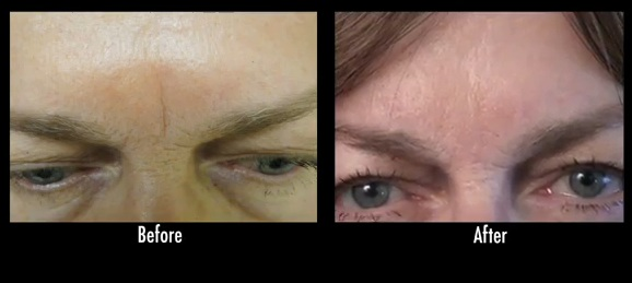 radiesse for frown line between eyebrows, before and after