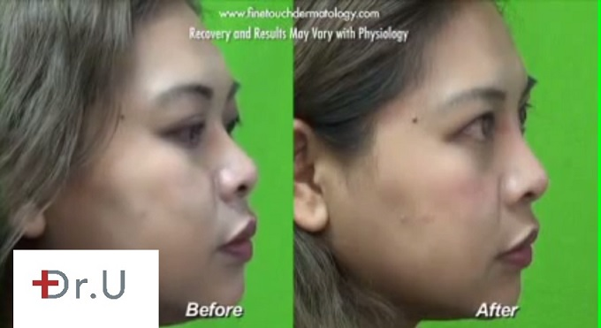 Non-Surgical Nose Job| Profile View