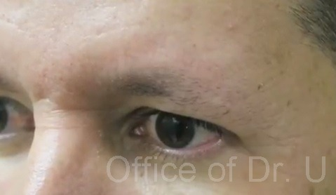 Side View|Sparse Brows Before Surgery
