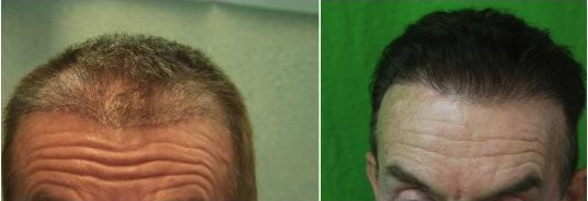Repair of Botched Hair Transplant| Beard Hair Grafts