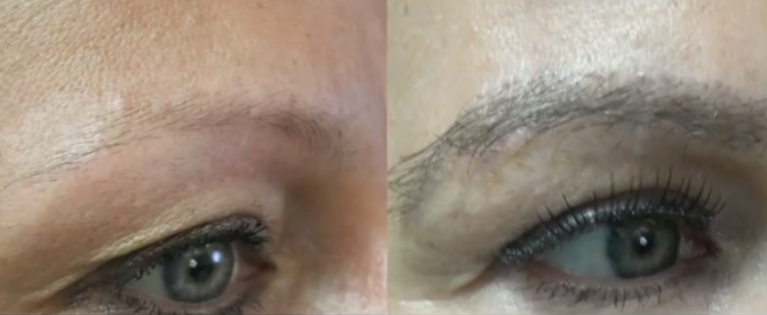 Eyebrow Transplant| Inspired By Kim Kardashian| Nape Hair Grafts