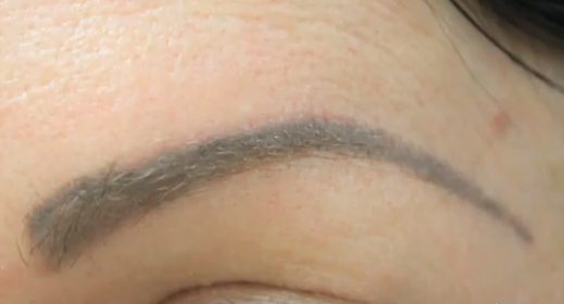 before eyebrow restoration by UGraft FUE