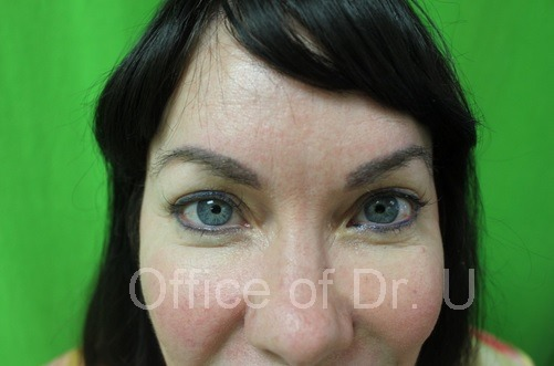 Close Up View of Patient's Brows