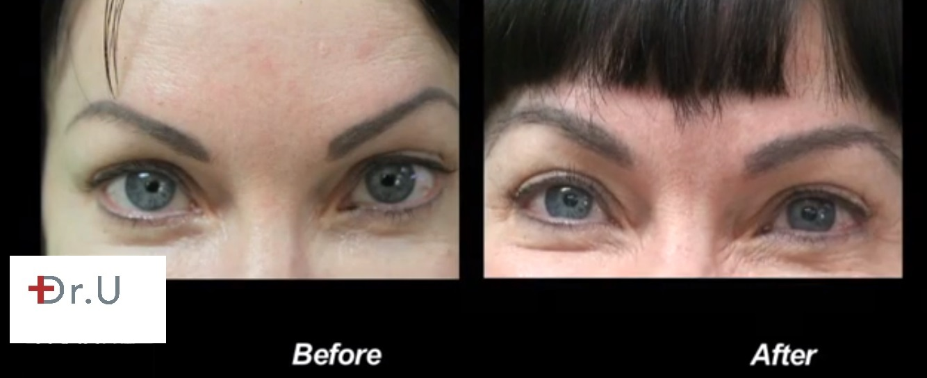 Eyebrow Transplant Results Front View- Nape Hair Results
