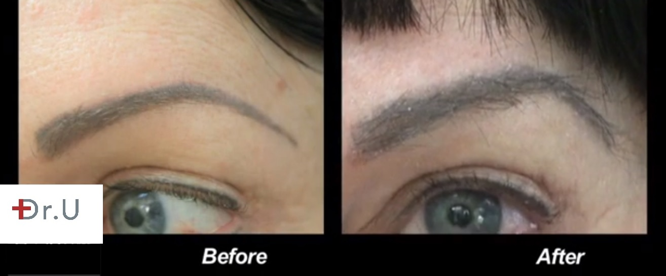 Eyebrow Transplant with uGraft Creates New Brows