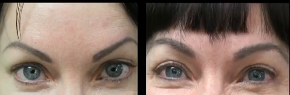 eyebrow transplant patient before and after