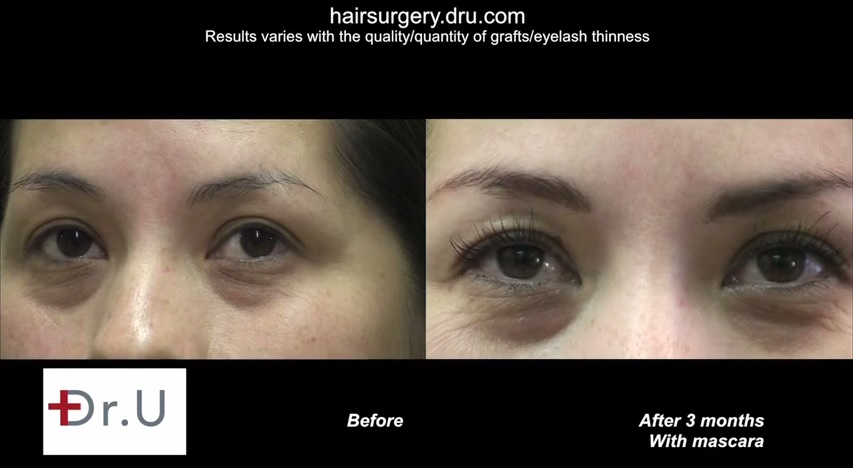 Eyelash Transplantation Results| Nape Hair Grafts on Female Patient