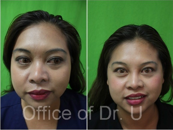 Front View| Non-Surgical Nose Job - Before and After Comparison