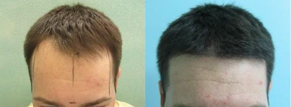 Hairline Restoration|FUE - Natural Results