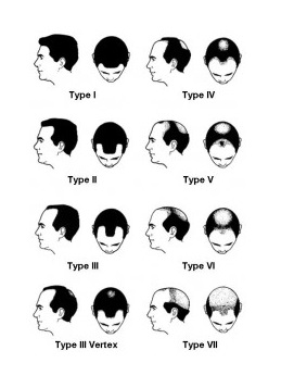 Hamilton Scale|Male Pattern Baldness