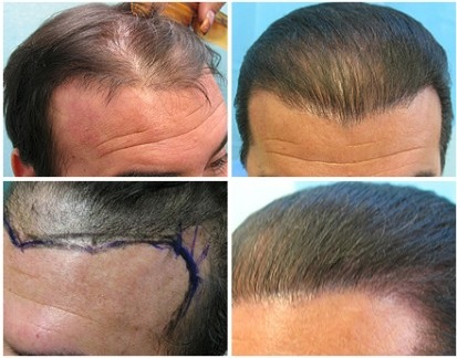 Juri Flap Repair| FUE Patient Results