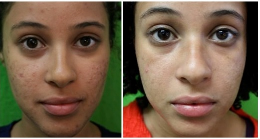 Acne Services| Los Angeles|Laser Treatment Results on Patient