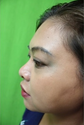 Los Angeles Patient Before Her Non-Surgical Nose Job With Radiesse