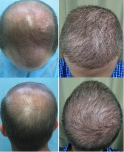 Norwood 6|Severe Baldness - Hair Loss Treatment