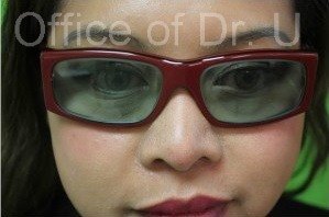 Patient Wears Glasses| Nose Bridge Contouring Without Surgery