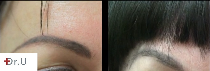 Right Eyebrow Nape Hair Grafts- Before and After Transplant