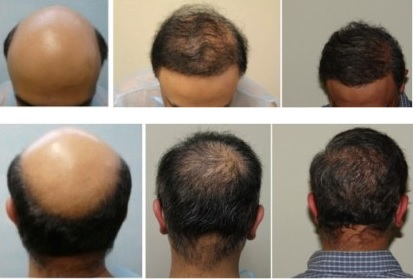 Hair Loss Treatment| Severe Baldness - Norwood 7