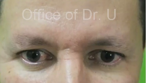 Sparse Eyebrows| Front View