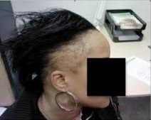 Traction Alopecia | Female Hair Loss
