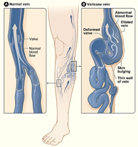 los-angeles-laser-varicose-vein-removal-www.wikipedia.com