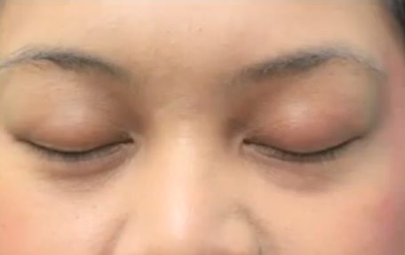 Patient's Eyelashes Before Her Transplant Surgery