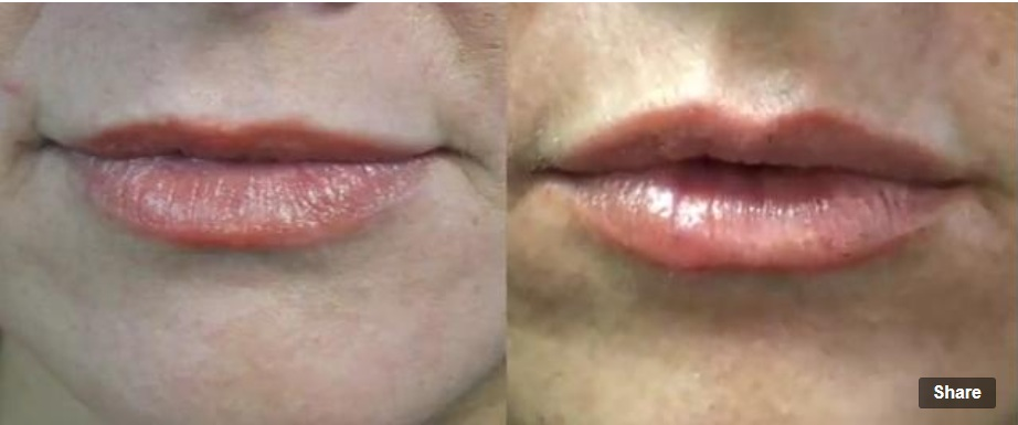 Augmented Lips With Juvederm| Before and After