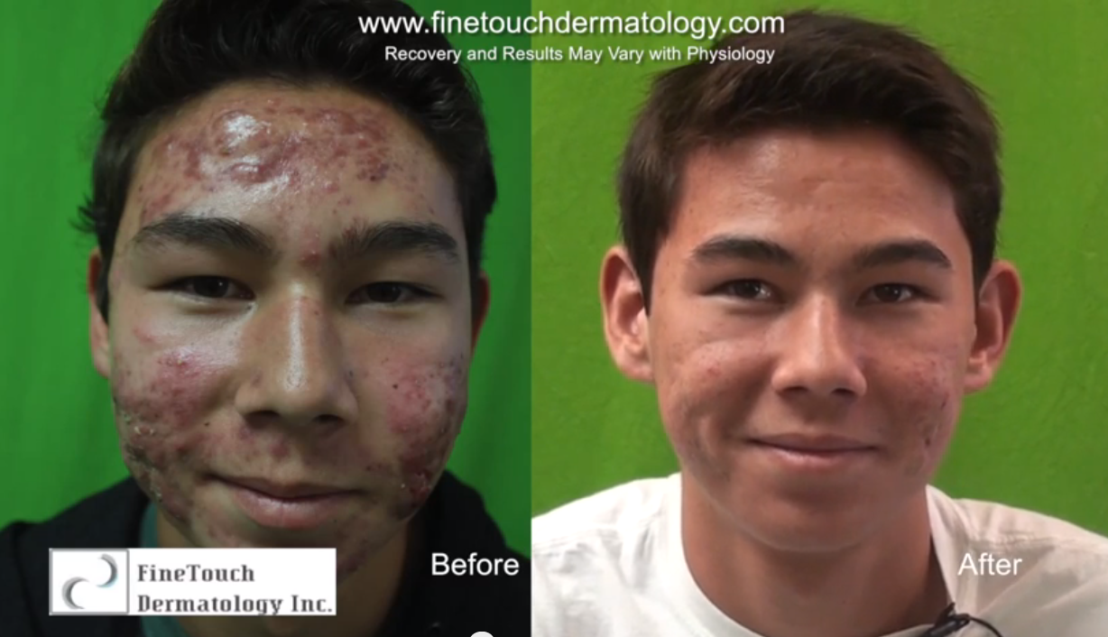 Conquering Severe Acne| Laser Treatment Results