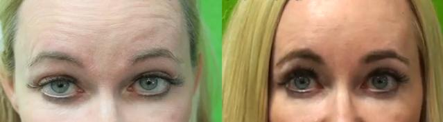 Los Angeles Patient Receives Botox For Forehead Lines
