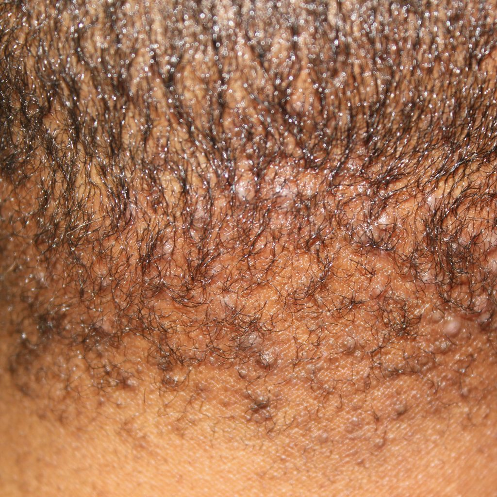 Folliculitis keloidalis | DermNet New Zealand