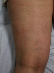 Result of leg vein treatment with Asclera