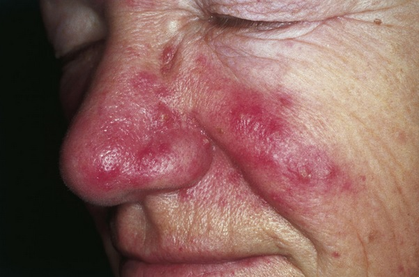 Rosacea| Red Bumps on Face